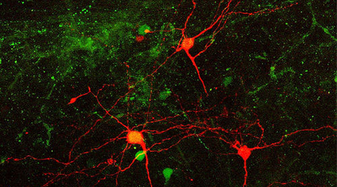 mouse cortical neurons